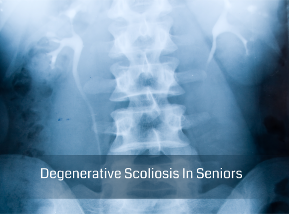 Degenerative Scoliosis In Seniors
